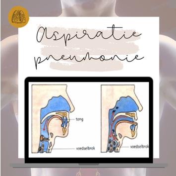 Aspiratiepneumonie: een longontsteking door verslikken